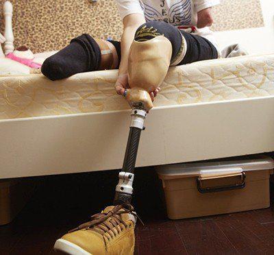 燒傷後,在醫院苦中作樂的167天