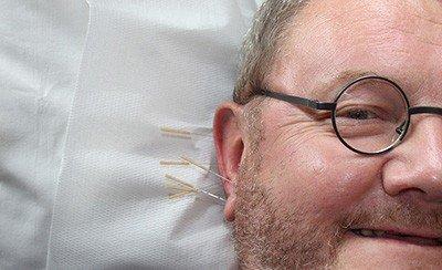 中醫針灸治療腦中風,有效減緩後遺症