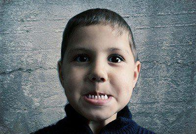 寶貝牙齒出現小黑點!幼兒牙齒的外因性染色