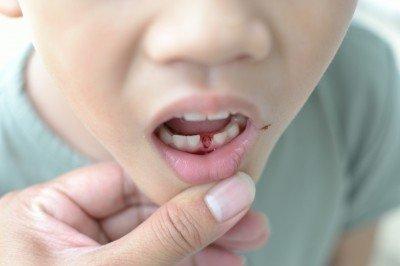 5-6歲童塗氟,降低恆齒齲齒率達46%