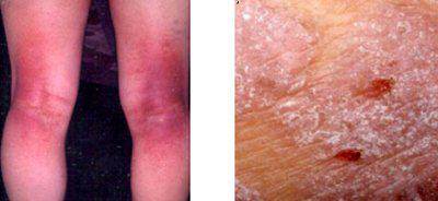 好討厭的癢癢小蟲∼談異位性皮膚炎的「診斷」條件!