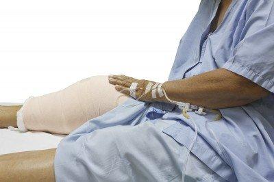 誤以為痛風,竟是致命的敗血性關節炎