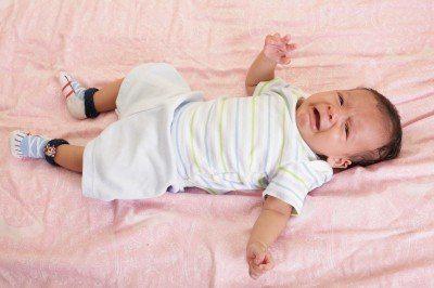 新生兒口中分泌物多、咳嗽嘔吐!罹患食道閉鎖合併食道氣管廔管