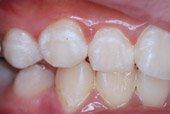 牙齒脫鈣?!口腔內的溫室效應!