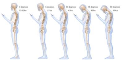 智慧型手機正在摧毀你的脊椎