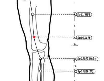 穴位保健─血海穴(消除濕癢與保健美人穴)