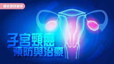子宮頸癌預防與治療