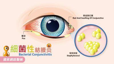 夏日當心感染「紅眼睛」,正確的洗手避免揉擦眼睛!