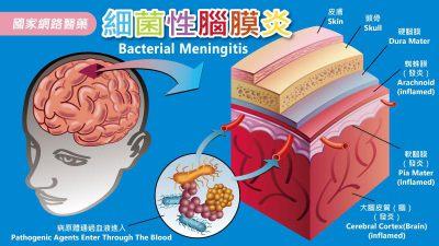 發燒及頭痛,小心細菌性腦膜炎
