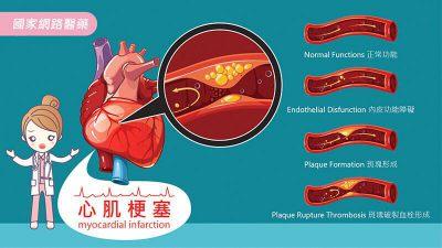急性心肌梗塞:6種前兆莫輕忽