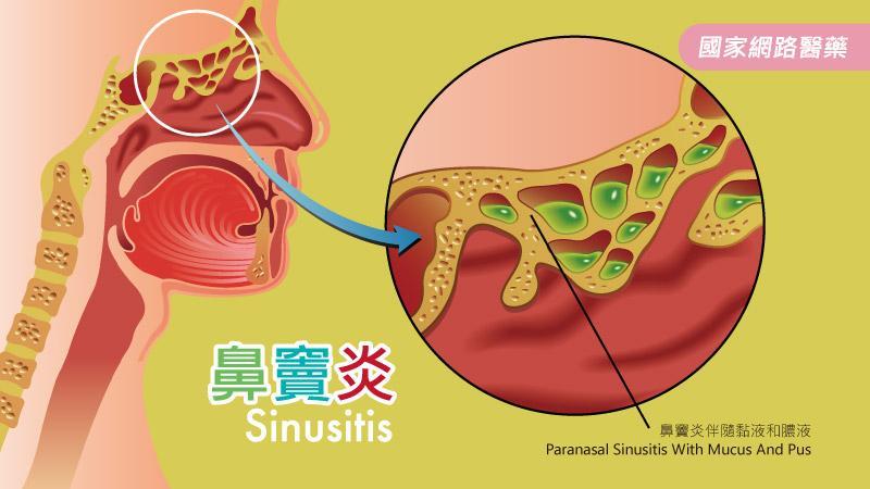 鼻瘜肉生生不息好困擾!鼻竇炎需適時治療