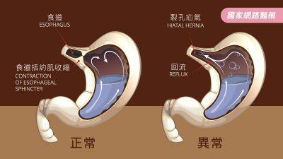 長期胃食道逆流,恐致食道腺癌