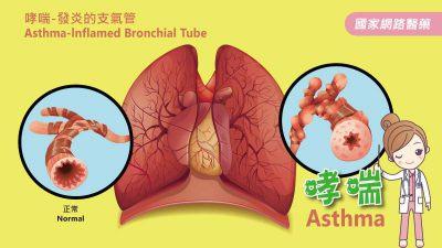 微生物 (Microbes)和氣喘 (Asthma)