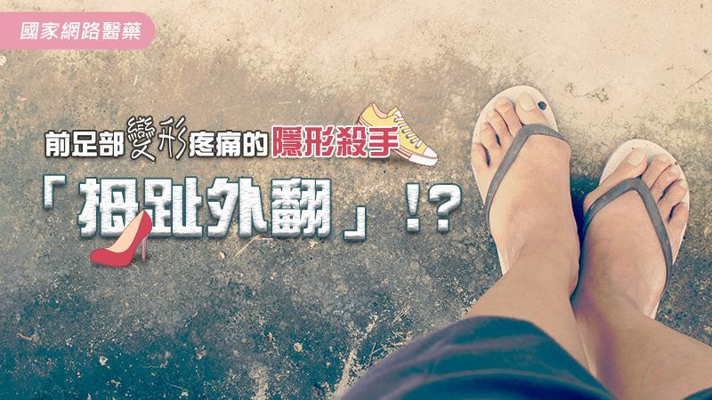 前足部變形疼痛的隱形殺手─拇趾外翻