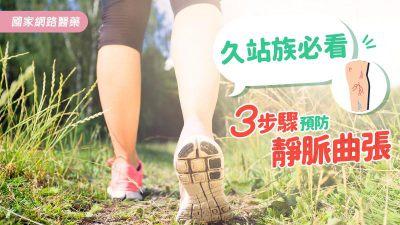久站族必看 3步驟預防靜脈曲張