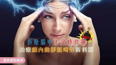 拆除腦中不定時炸彈 治療顱內動靜脈畸形新利器