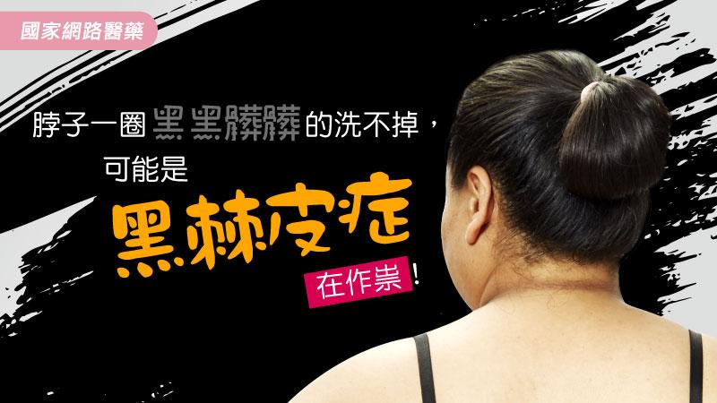 脖子一圈黑黑髒髒的洗不掉,可能是「黑棘皮症」在作祟!