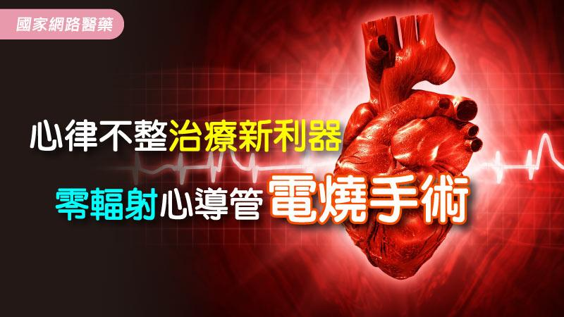 心律不整治療新利器--零輻射心導管電燒手術