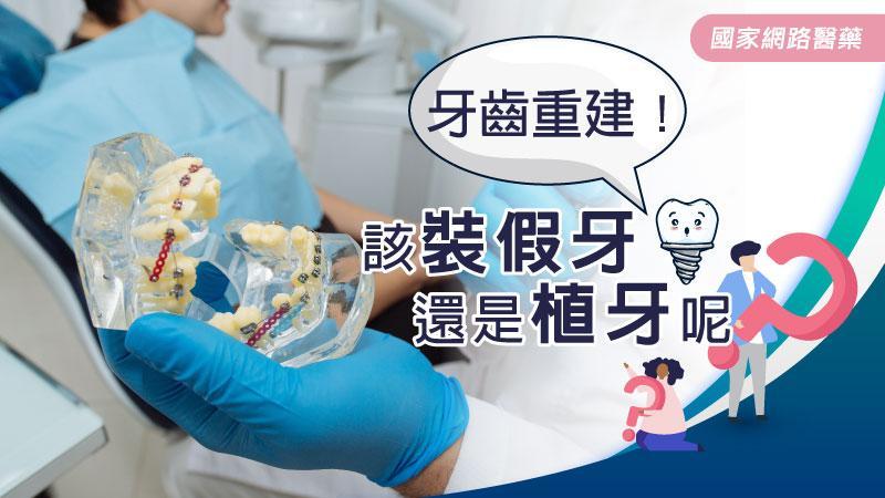 牙齒重建!該裝假牙還是植牙呢?