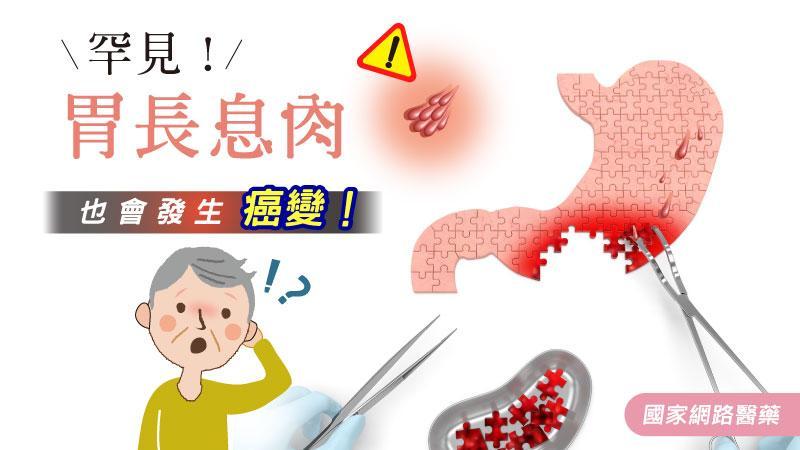 罕見!胃長息肉也會發生癌變!