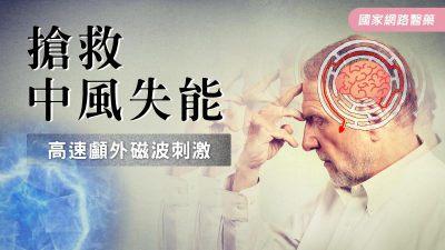 搶救中風失能 高速顱外磁波刺激