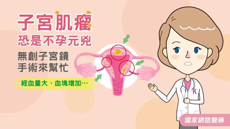 子宮肌瘤恐是不孕元兇 無創子宮鏡手術來幫忙