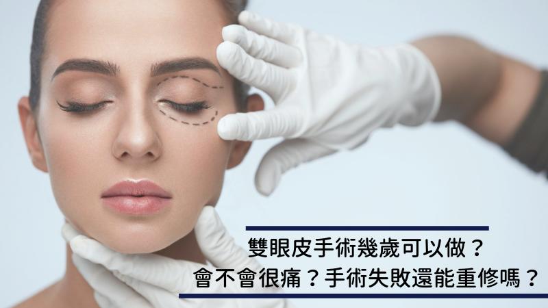 雙眼皮手術幾歲可以做?會不會很痛?手術失敗還能重修嗎?