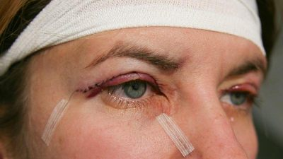 雙眼皮遲遲不消腫 需要做雙眼皮重修嗎