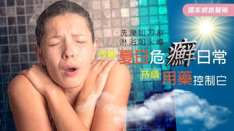 改善夏日危「癬」日常 持續用藥控制它 乾癬不復發