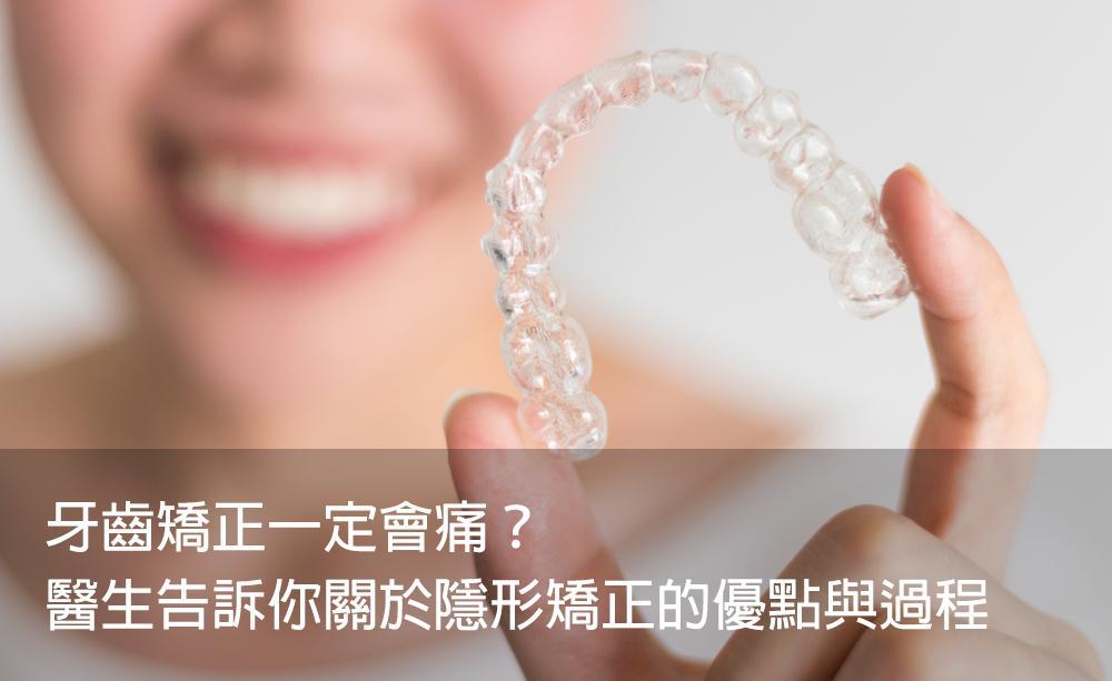 牙齒矯正一定會痛?醫生告訴你關於隱形矯正的優點與過程