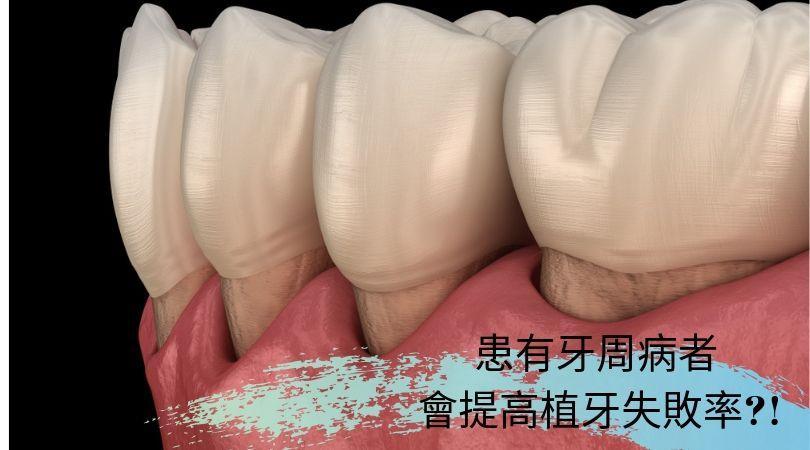 患有牙周病者  會提高植牙失敗率?!