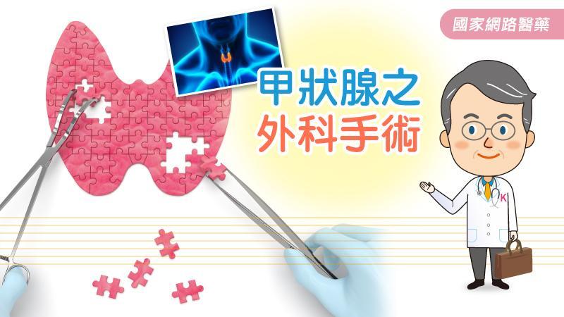 甲狀腺之外科手術