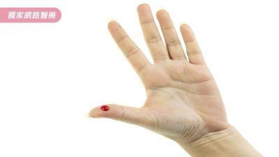 【道聽不塗說】抽穴道的血?就是俗稱的「放血」?!