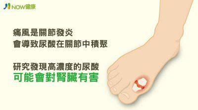 高濃度尿酸有害腎臟 痛風恐列入慢性腎病危險因子