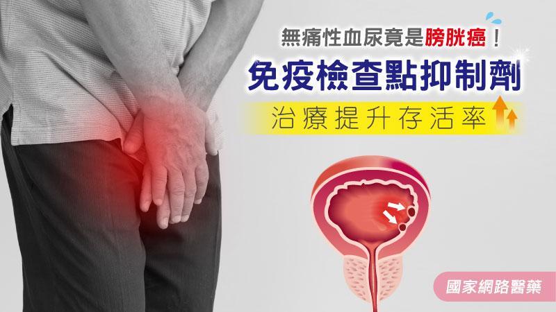 無痛性血尿竟是膀胱癌!免疫檢查點抑制劑治療提升存活率