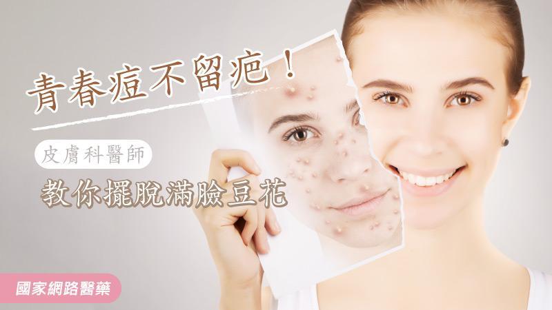 青春痘不留疤!皮膚科醫師教你擺脫滿臉豆花