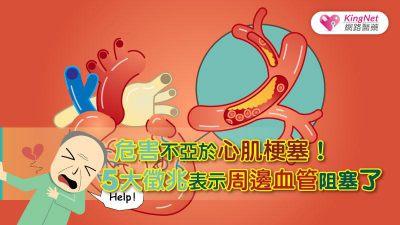 危害不亞於心肌梗塞!5大徵兆表示周邊血管阻塞了